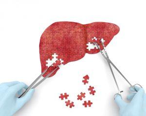 Key steps liver transplant